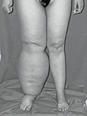 tratamiento-pierna-hinchada-225x300