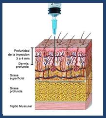 Lipomesoplastia