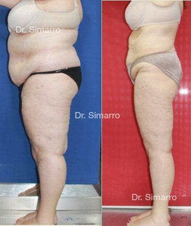 Paciente Doctor Simarro – Lipedema, Linfodema