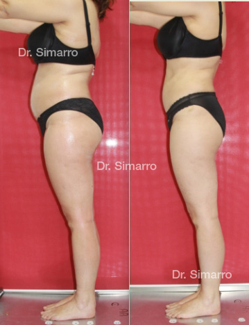 Paciente Doctor Simarro - Lipedema, Linfodema